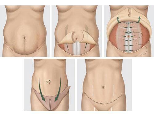 liposuccion du ventre ou l'abdominoplastie