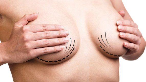 """Résultat de recherche d'images pour """"augmentation mammaire usa"""""""