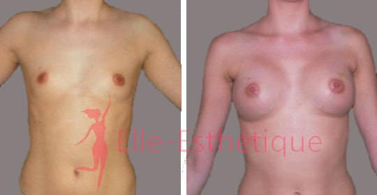 augmentation-mammaire-avant-apres