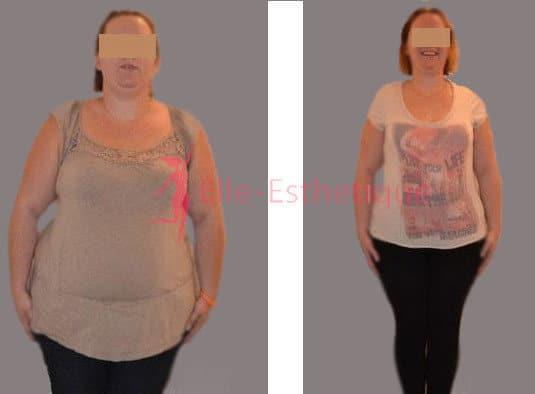 chirurgie de l'obésité avant apres 2