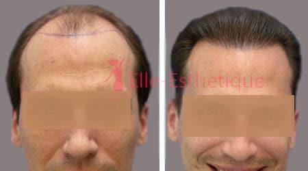 greffe des cheveux resultat
