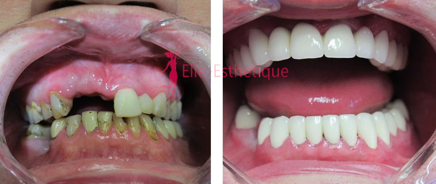 implant-dentaire-avant-apres