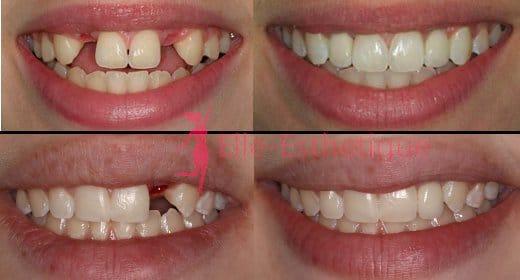 implant dentaire resultat