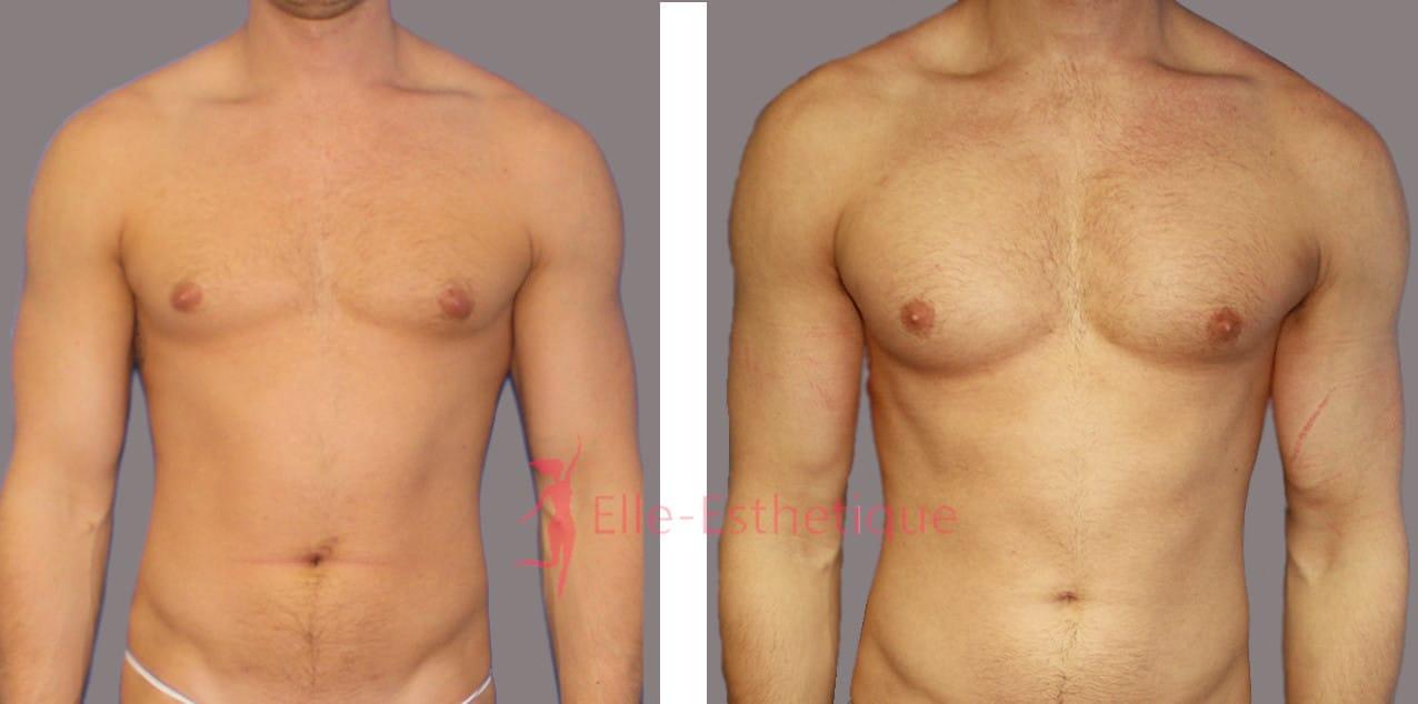 implants pectoraux avant apres
