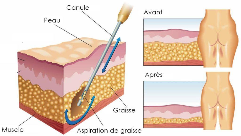 incision liposuccion