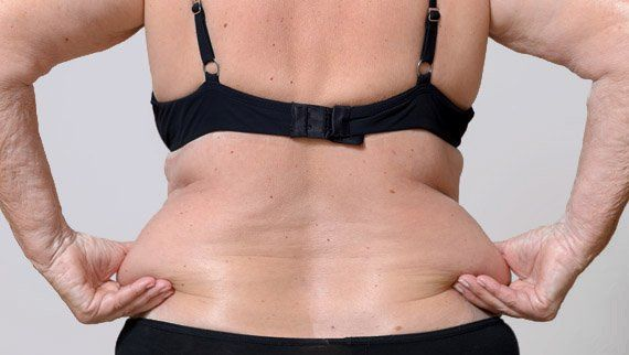 liposuccion du ventre