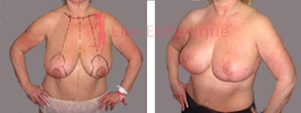 reduction-mammaire-avant-apres-