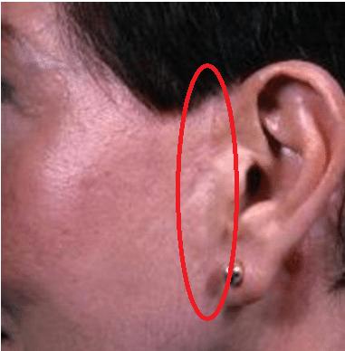 cicatrice lifting raté