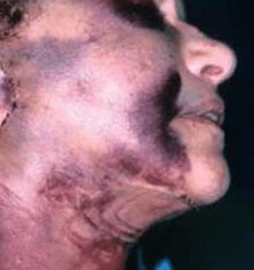 lifting de visage raté hématome majeur